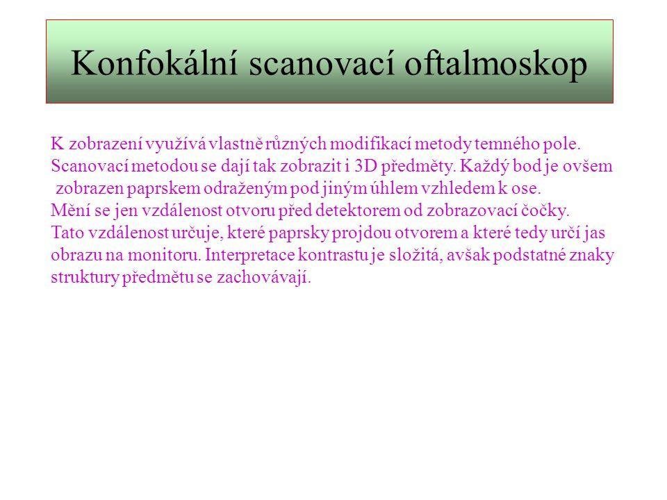 Konfokální scanovací oftalmoskop