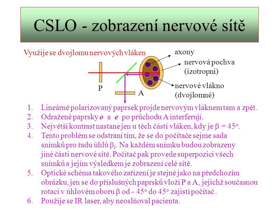 CSLO - zobrazení nervové sítě