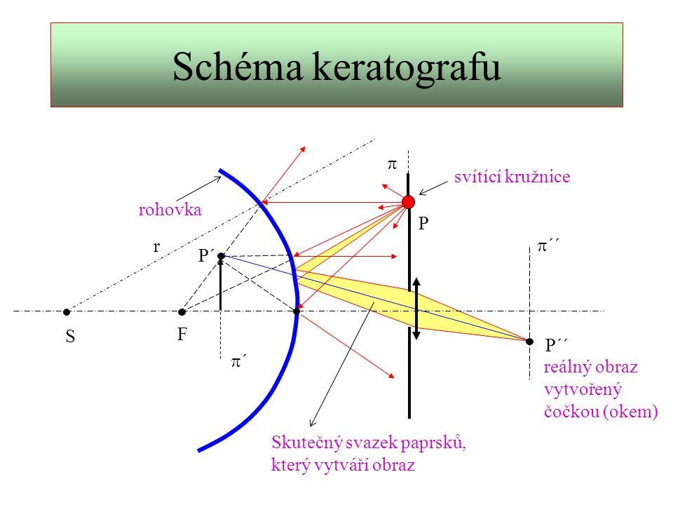 Schéma keratografu p svítící kružnice rohovka P r p´´ P´ F S P´´ p´