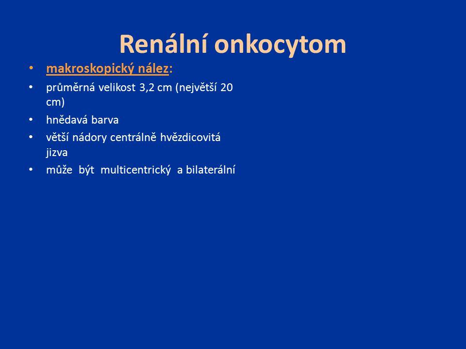 Renální onkocytom makroskopický nález: