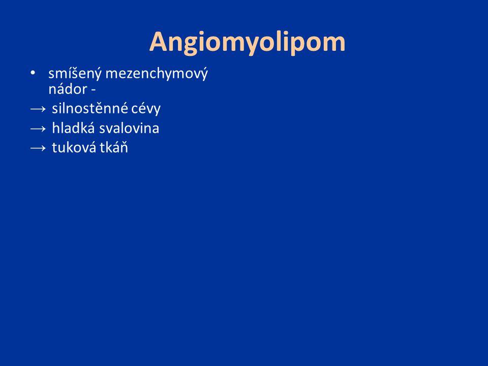 Angiomyolipom smíšený mezenchymový nádor - silnostěnné cévy