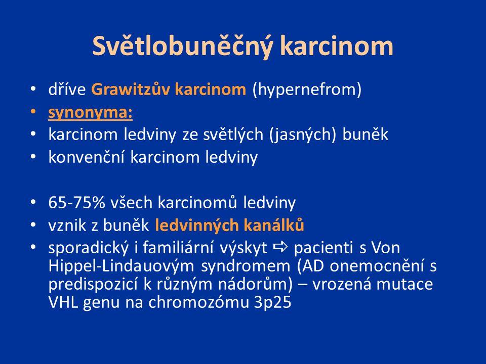 Světlobuněčný karcinom