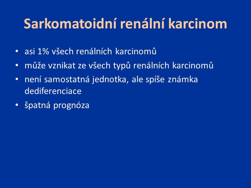 Sarkomatoidní renální karcinom