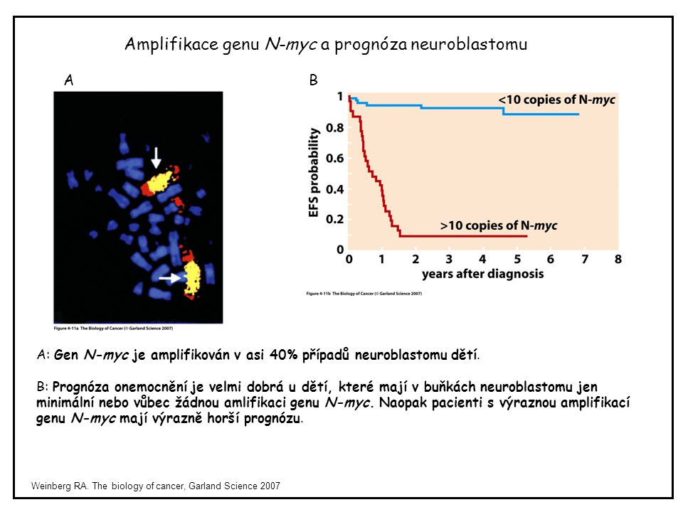 Amplifikace genu N-myc a prognóza neuroblastomu