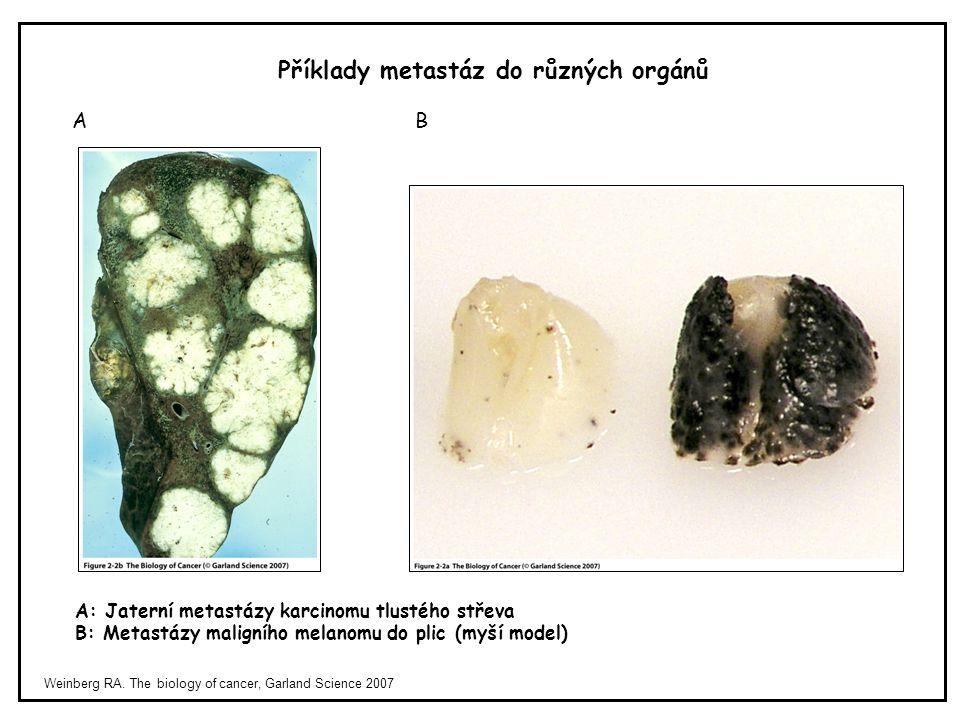 Příklady metastáz do různých orgánů