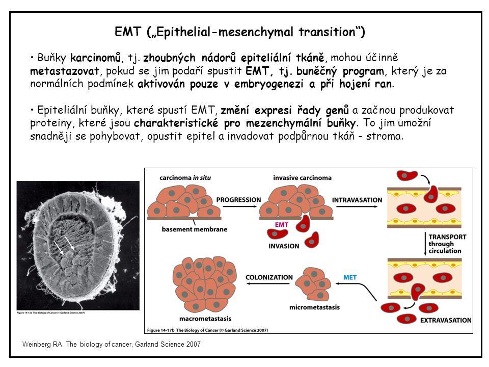 "EMT (""Epithelial-mesenchymal transition )"