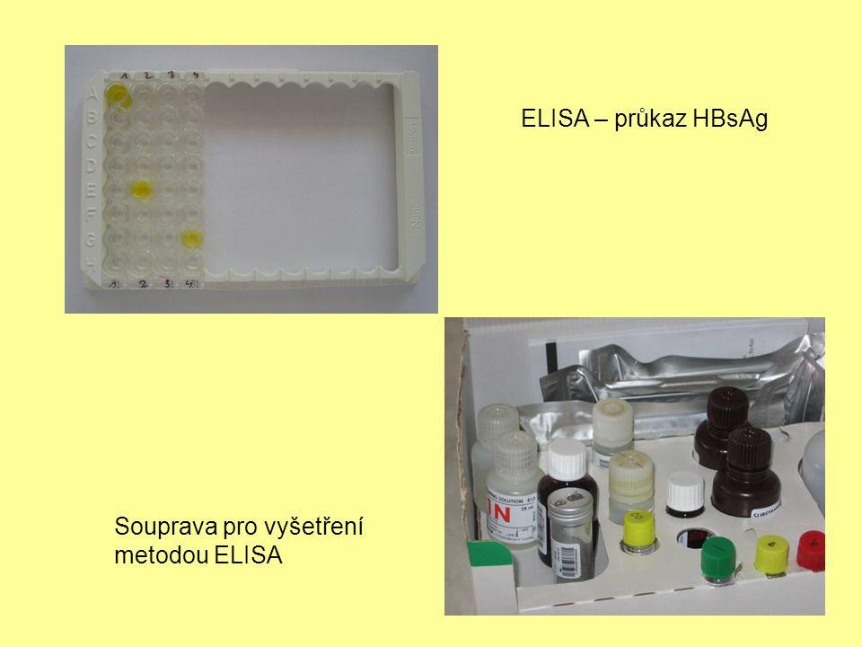 ELISA – průkaz HBsAg Souprava pro vyšetření metodou ELISA