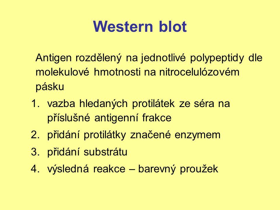 Western blot Antigen rozdělený na jednotlivé polypeptidy dle molekulové hmotnosti na nitrocelulózovém pásku.