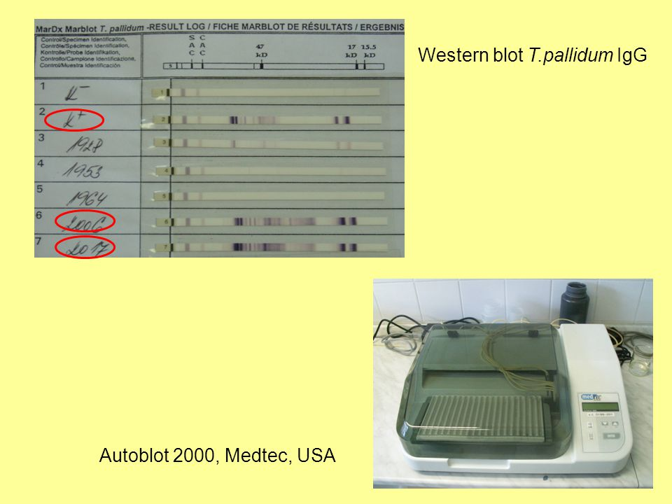 Western blot T.pallidum IgG