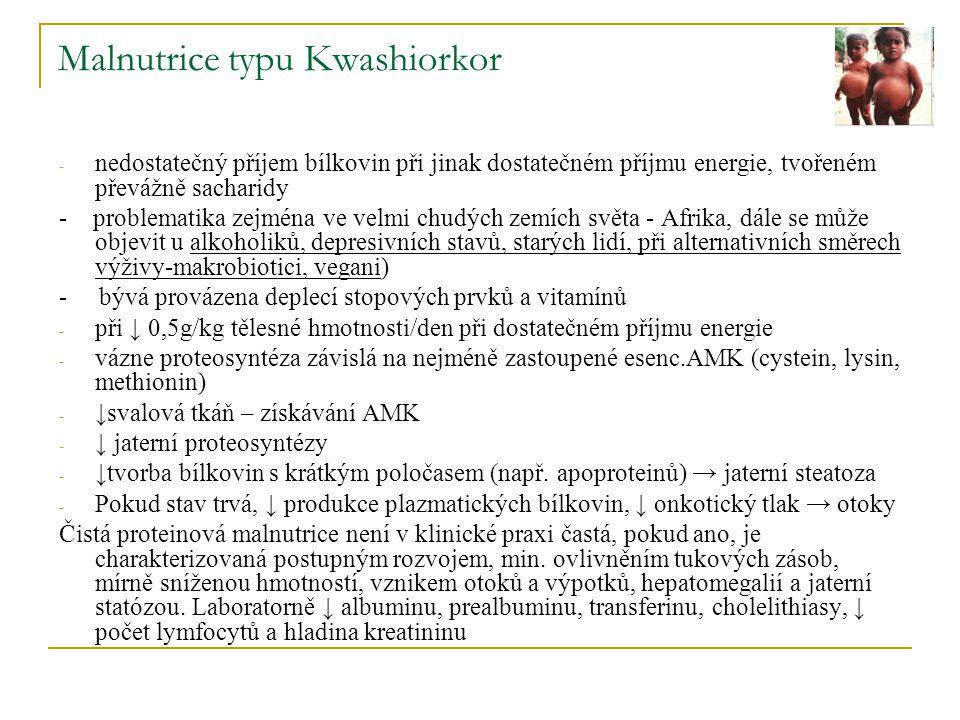 Malnutrice typu Kwashiorkor