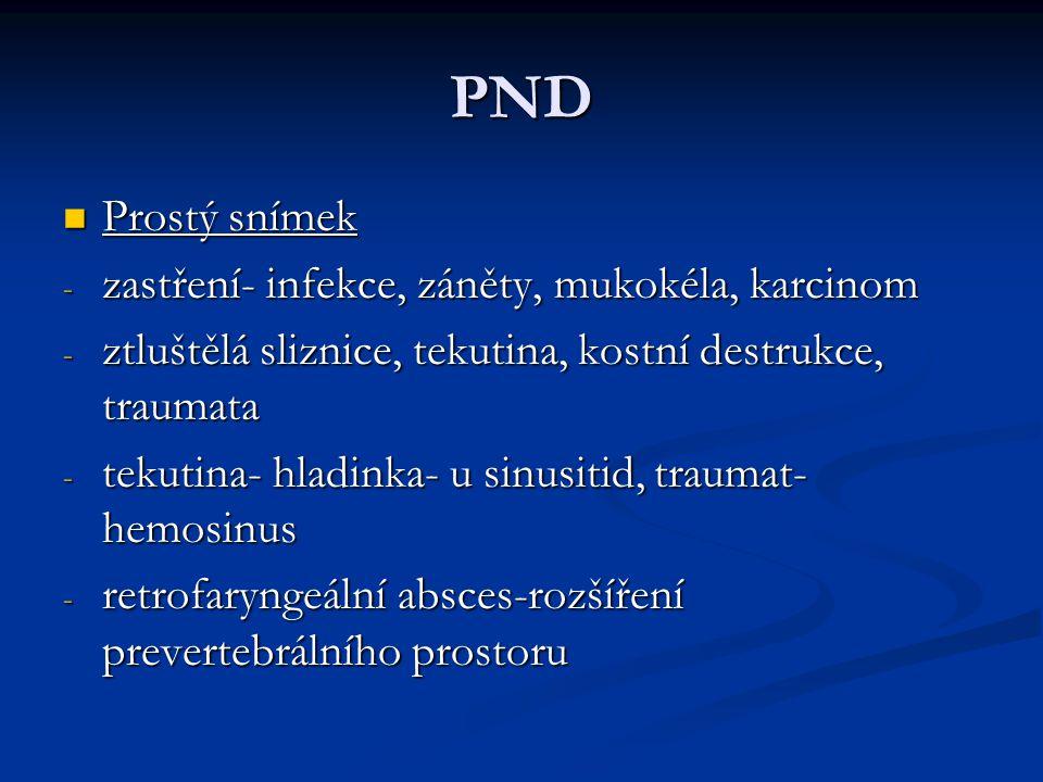 PND Prostý snímek zastření- infekce, záněty, mukokéla, karcinom