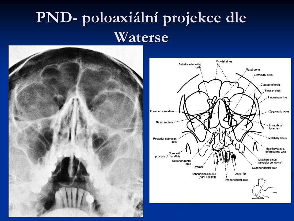 PND- poloaxiální projekce dle Waterse