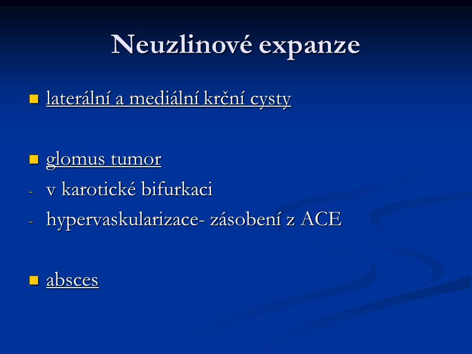 Neuzlinové expanze laterální a mediální krční cysty glomus tumor