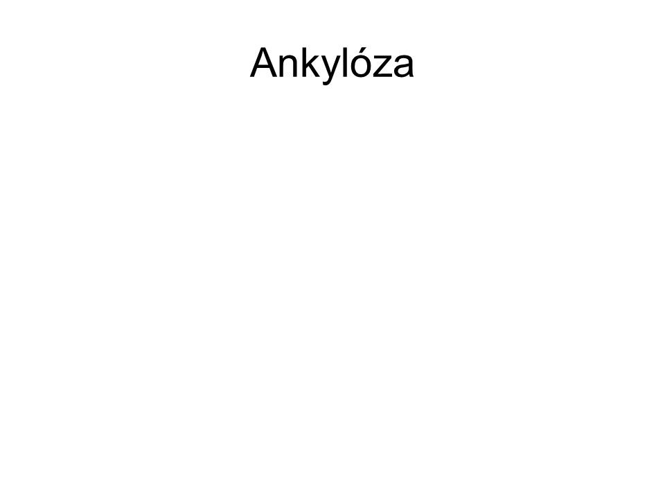 Ankylóza