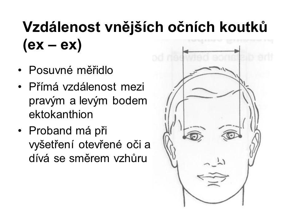 Vzdálenost vnějších očních koutků (ex – ex)
