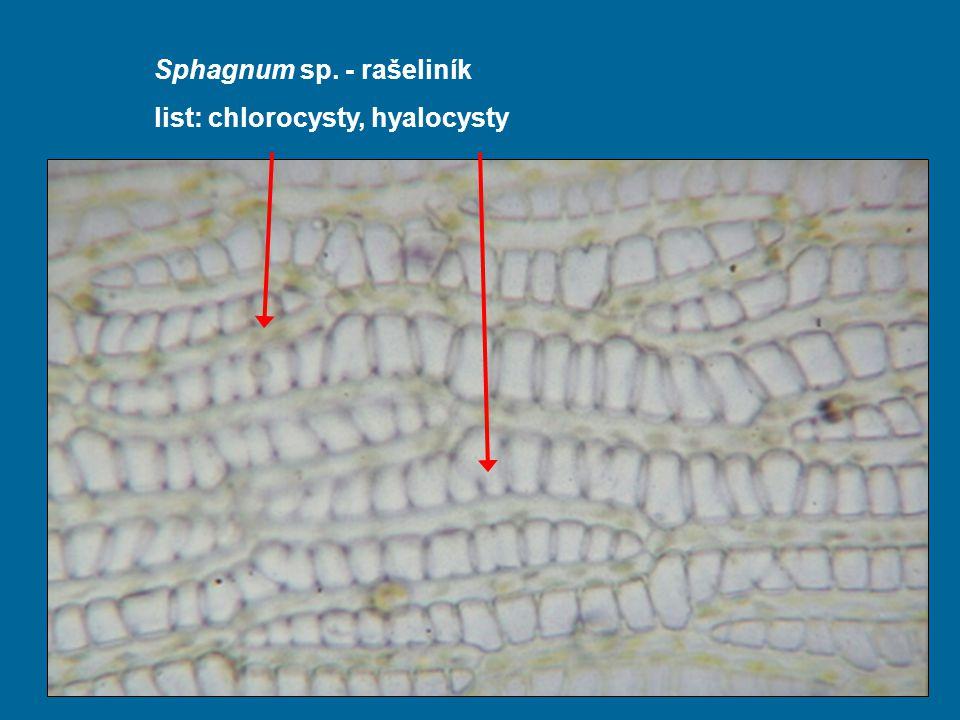 Sphagnum sp. - rašeliník