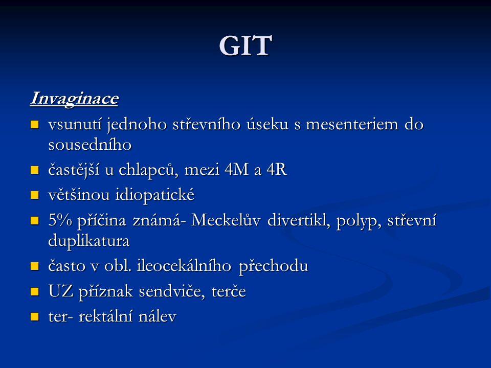 GIT Invaginace. vsunutí jednoho střevního úseku s mesenteriem do sousedního. častější u chlapců, mezi 4M a 4R.