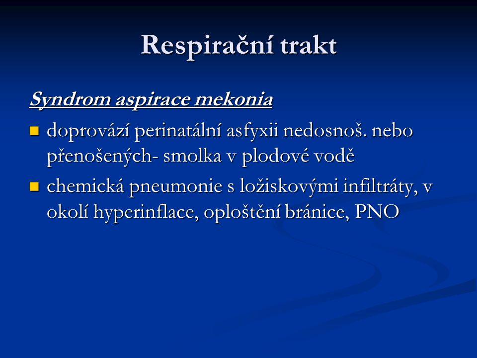 Respirační trakt Syndrom aspirace mekonia
