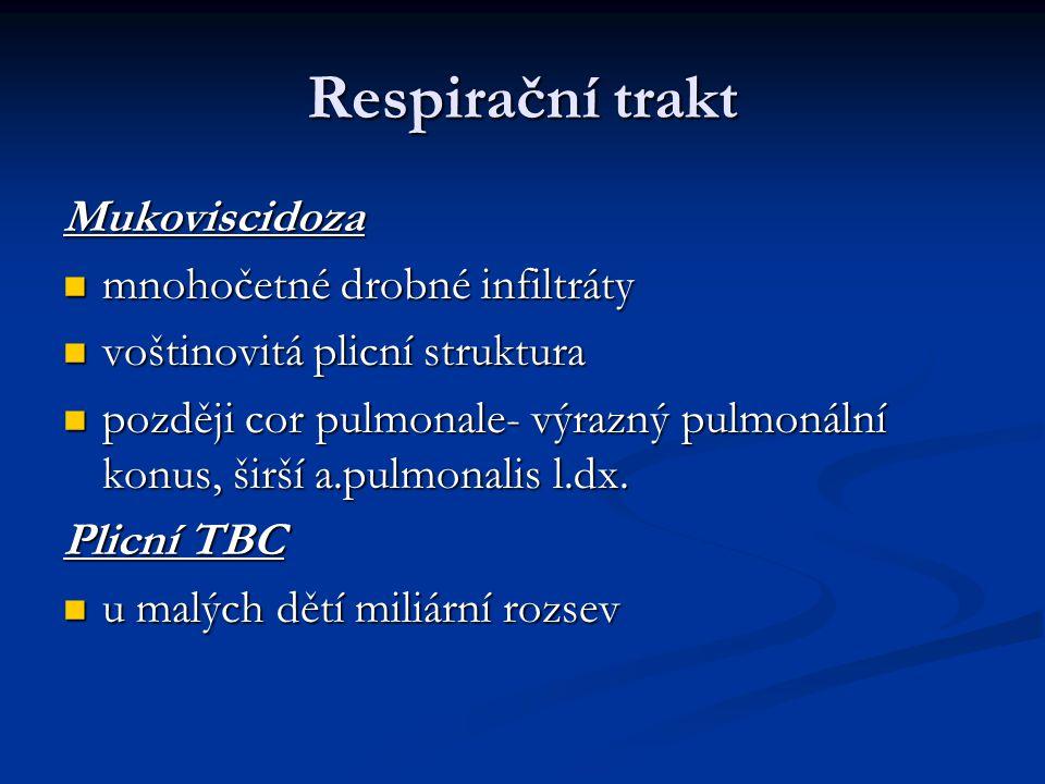 Respirační trakt Mukoviscidoza mnohočetné drobné infiltráty