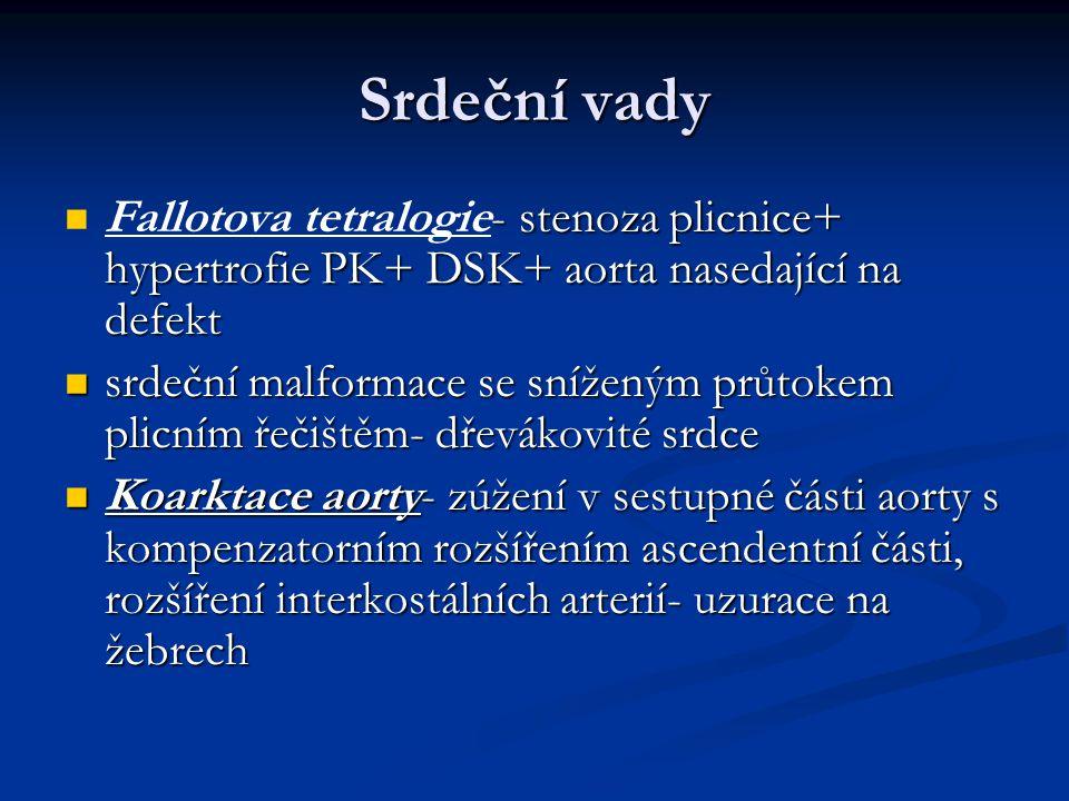 Srdeční vady Fallotova tetralogie- stenoza plicnice+ hypertrofie PK+ DSK+ aorta nasedající na defekt.