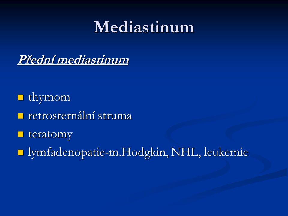 Mediastinum Přední mediastinum thymom retrosternální struma teratomy