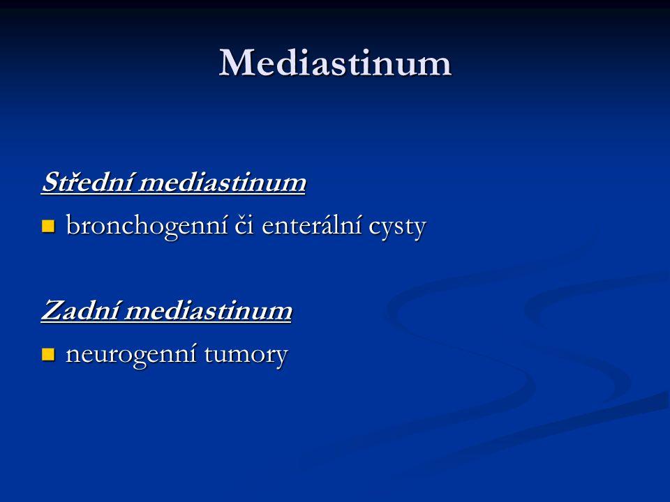 Mediastinum Střední mediastinum bronchogenní či enterální cysty
