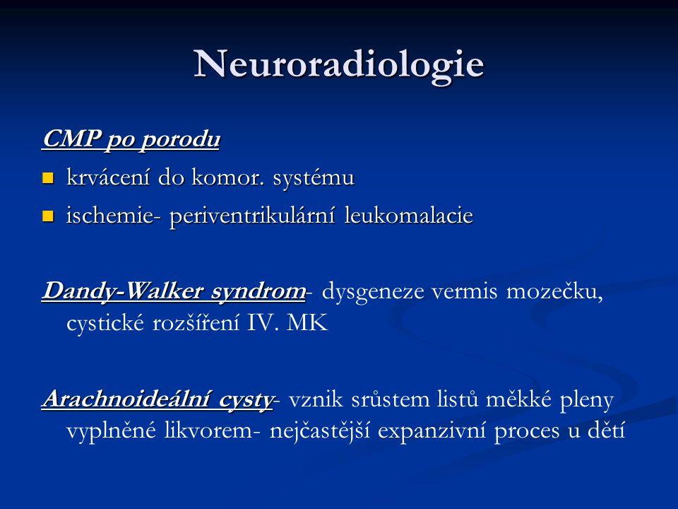 Neuroradiologie CMP po porodu krvácení do komor. systému
