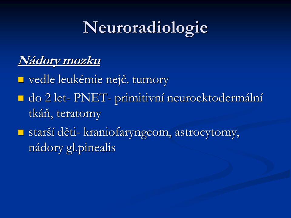 Neuroradiologie Nádory mozku vedle leukémie nejč. tumory