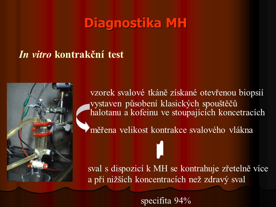 Diagnostika MH In vitro kontrakční test