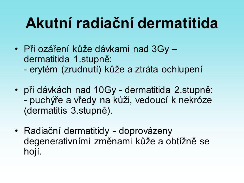 Akutní radiační dermatitida