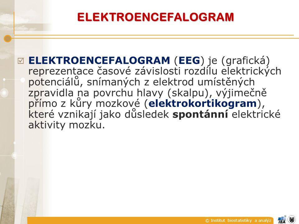 ELEKTROENCEFALOGRAM