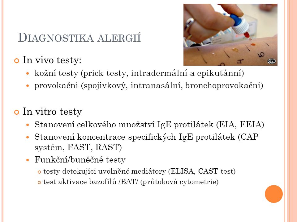 Diagnostika alergií In vivo testy: In vitro testy