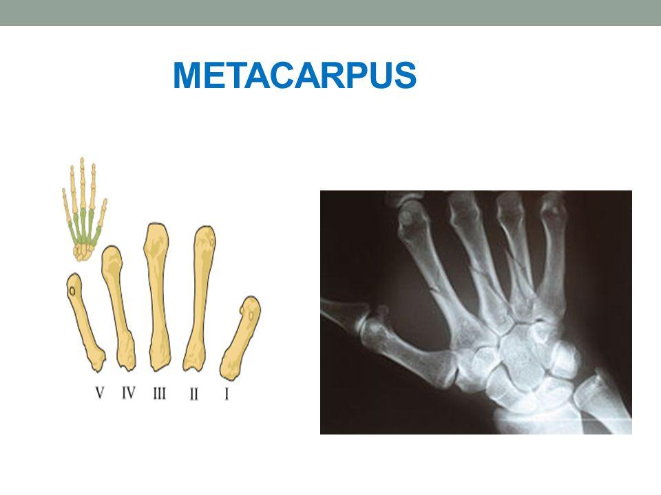 METACARPUS