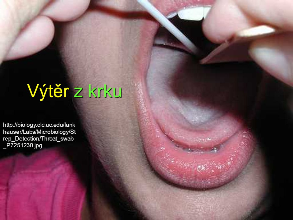 Výtěr z krku http://biology.clc.uc.edu/fankhauser/Labs/Microbiology/Strep_Detection/Throat_swab_P7251230.jpg.