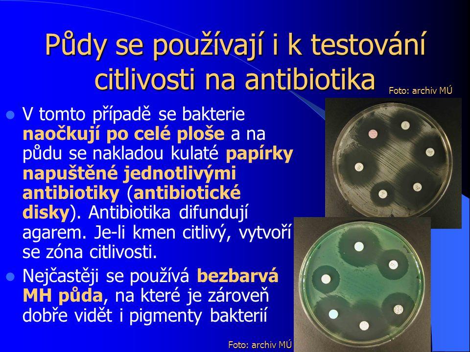 Půdy se používají i k testování citlivosti na antibiotika