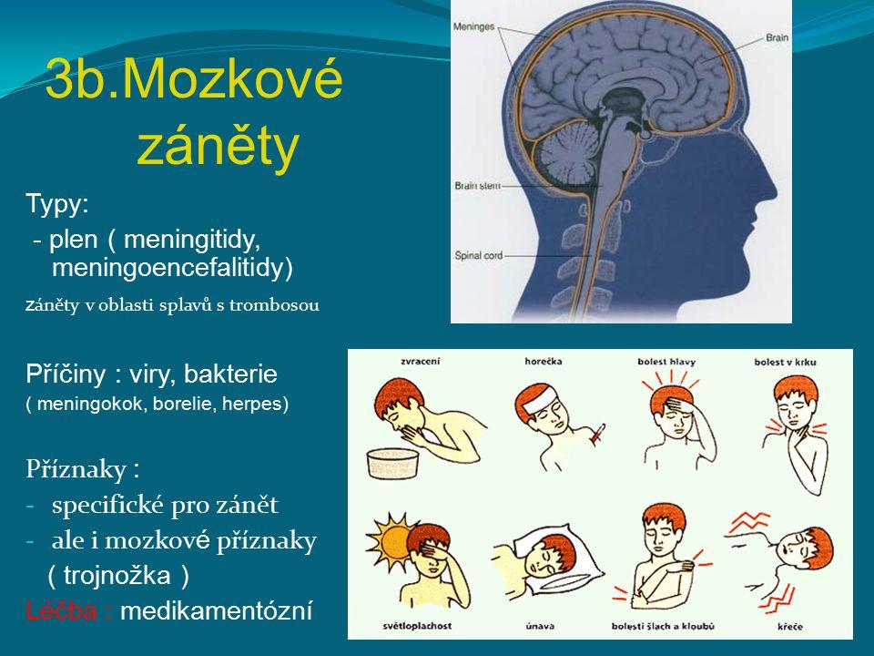 3b.Mozkové záněty Typy: - plen ( meningitidy, meningoencefalitidy)