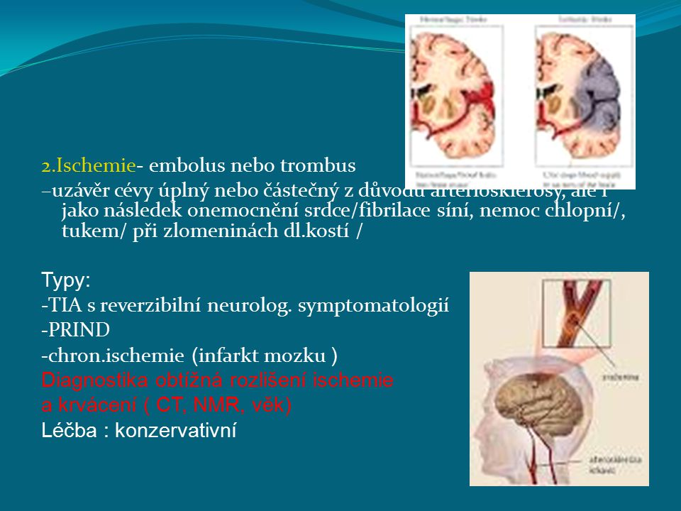 2.Ischemie- embolus nebo trombus