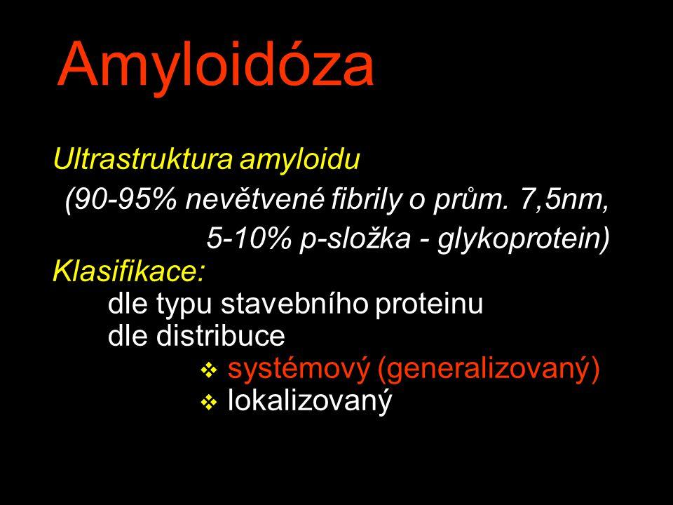 Amyloidóza Ultrastruktura amyloidu