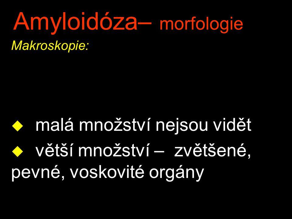 Amyloidóza– morfologie