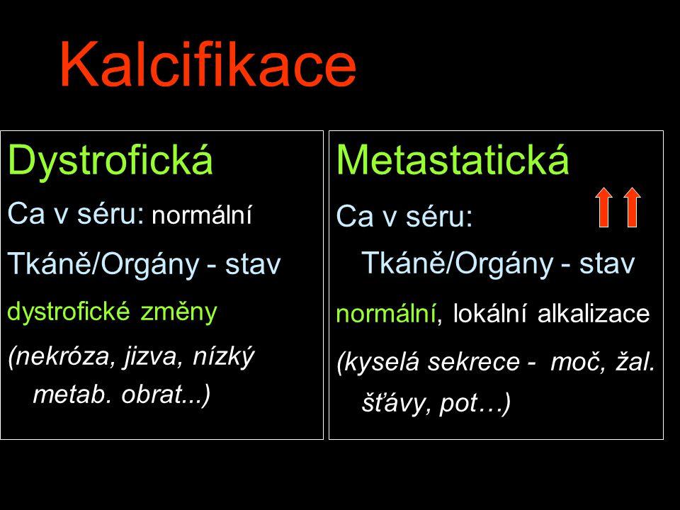 Kalcifikace Dystrofická Metastatická Ca v séru: normální