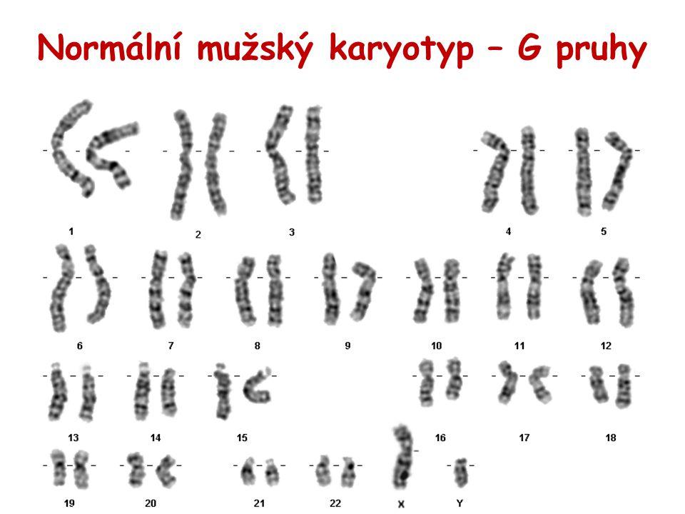 Normální mužský karyotyp – G pruhy