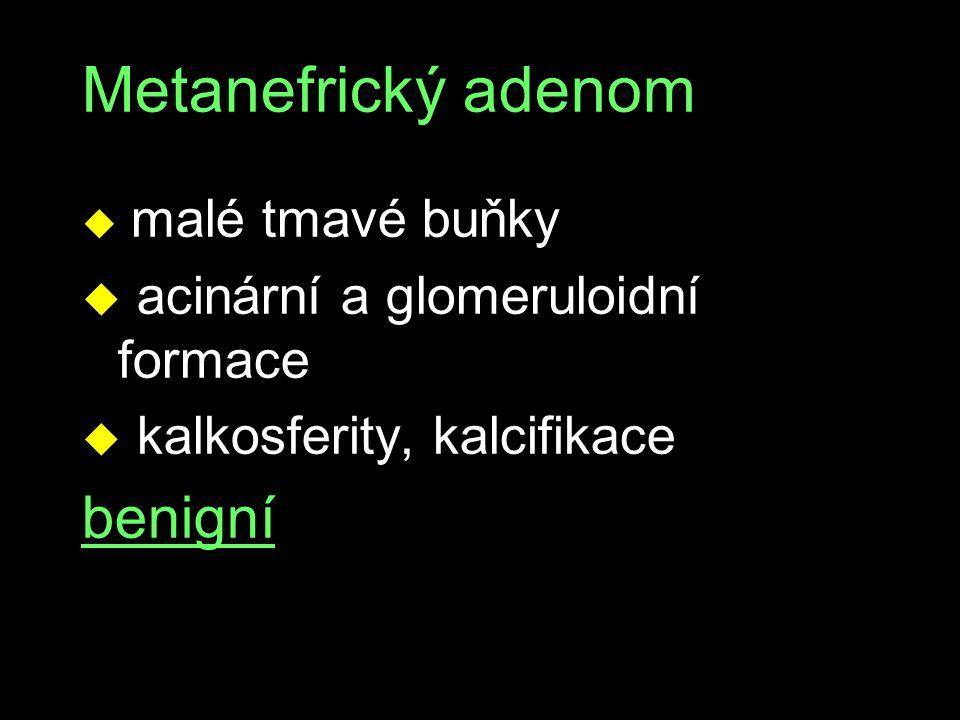 Metanefrický adenom benigní acinární a glomeruloidní formace