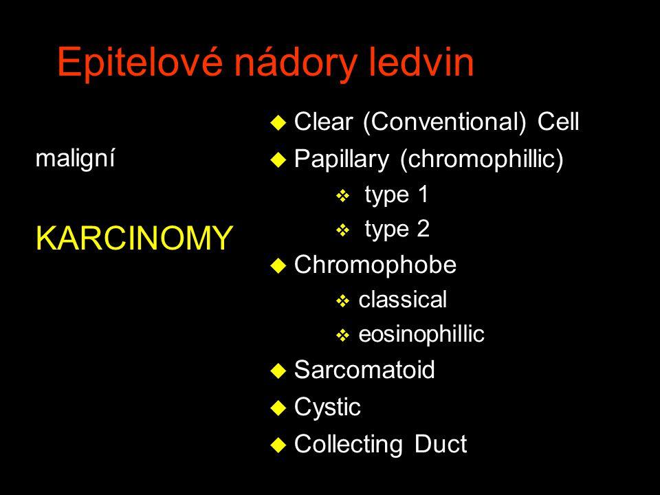 Epitelové nádory ledvin