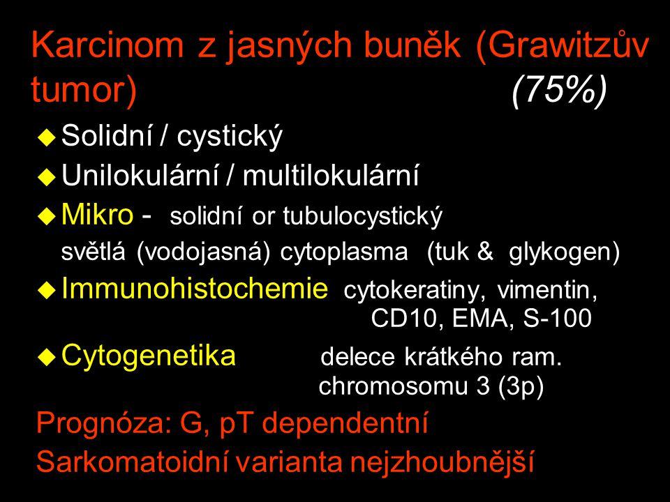 Karcinom z jasných buněk (Grawitzův tumor) (75%)