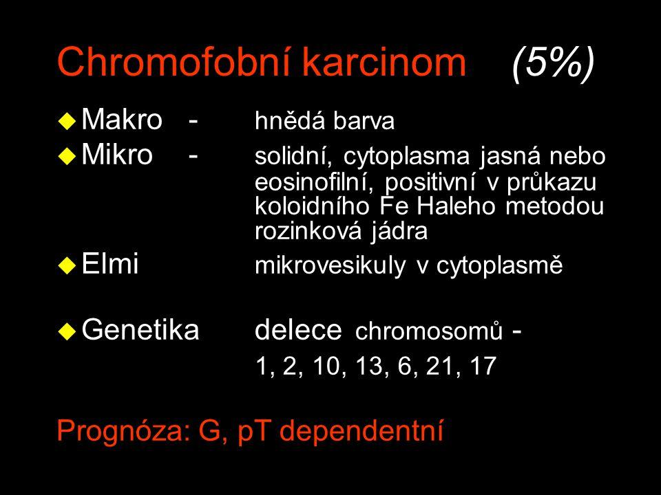 Chromofobní karcinom (5%)