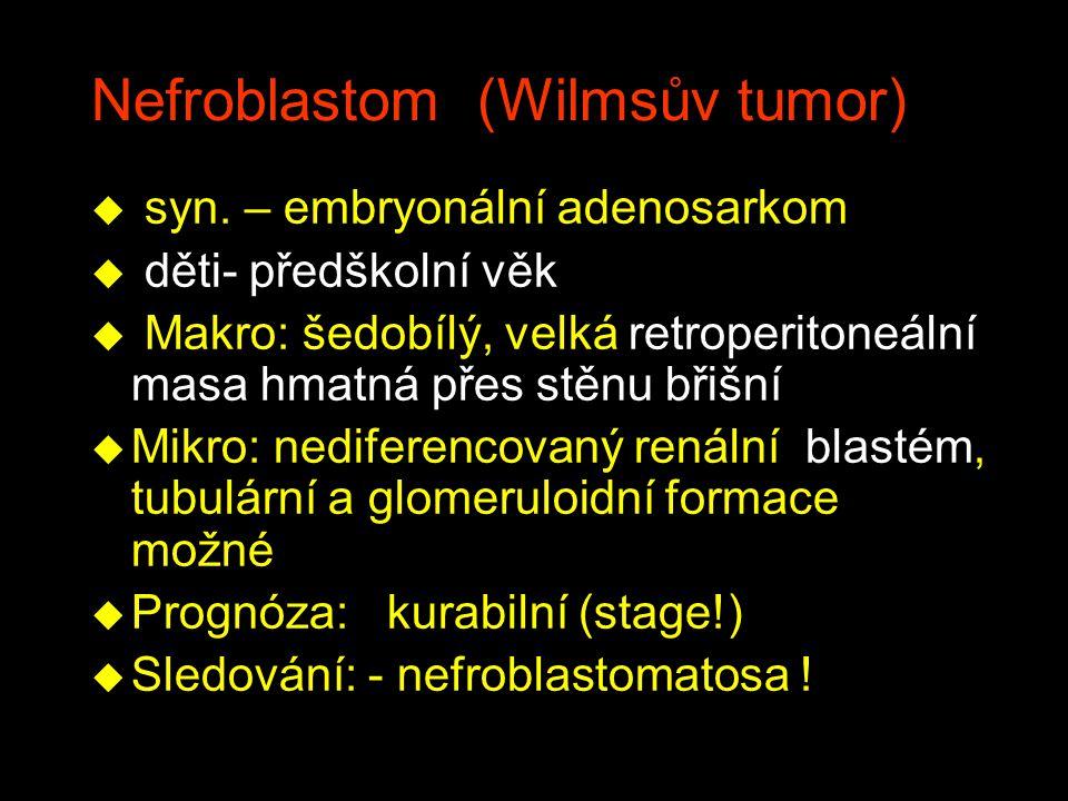 Nefroblastom (Wilmsův tumor)