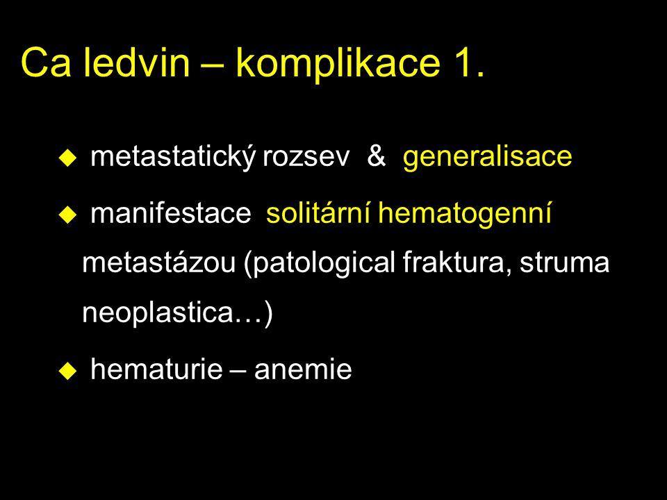 Ca ledvin – komplikace 1. metastatický rozsev & generalisace