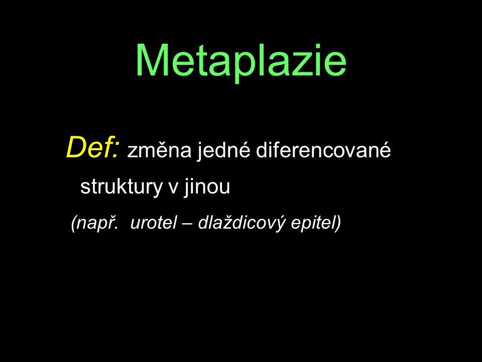 Metaplazie Def: změna jedné diferencované struktury v jinou