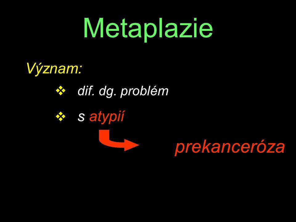 Metaplazie Význam: dif. dg. problém s atypií prekanceróza