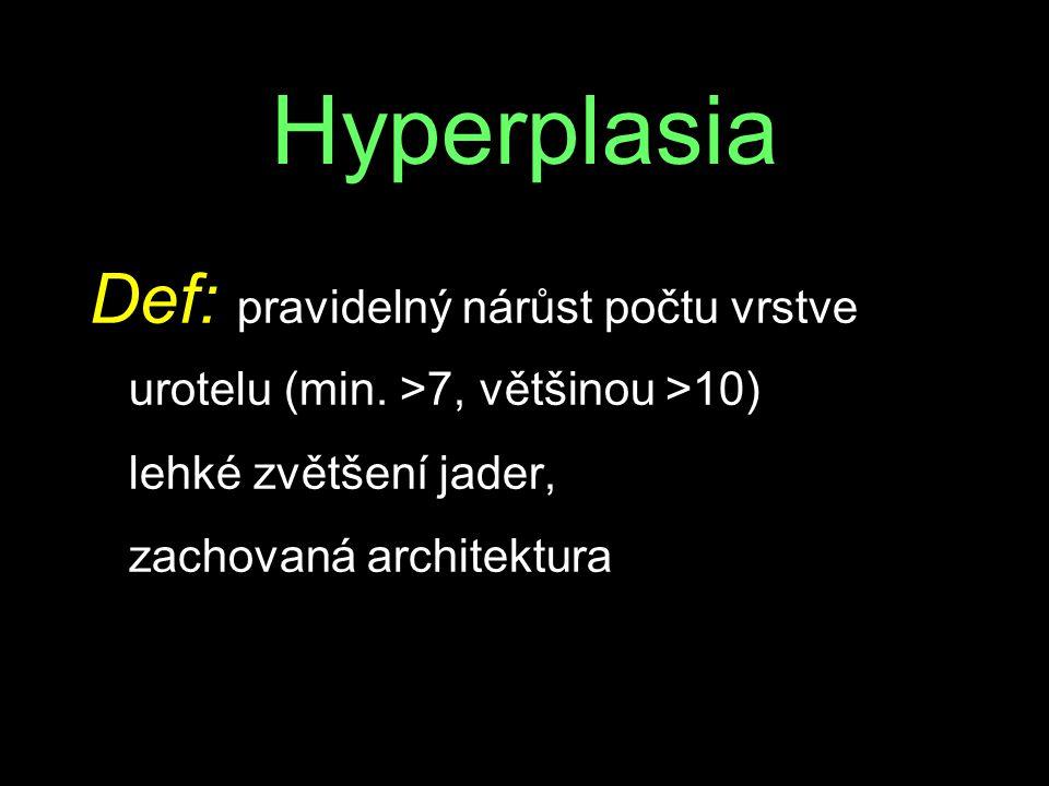 Hyperplasia Def: pravidelný nárůst počtu vrstve urotelu (min. >7, většinou >10) lehké zvětšení jader,